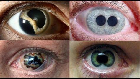imagenes reales de ojos ojos humanos reales que parecen mentira youtube