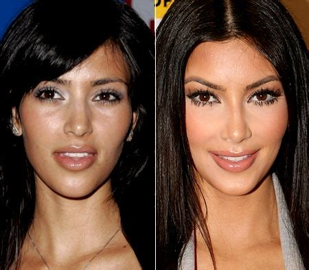 kim kardashian plastic surgery before and after plastic