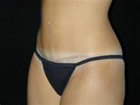 tummy tuck after c section tummy tuck after c section before after photos