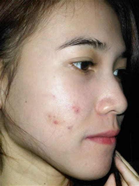 Bedak Nirmalasari Vina Story Acne Is The Most Scary In The World