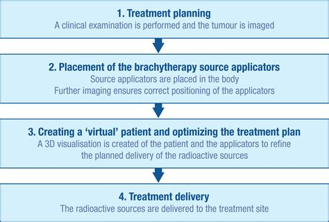 The Procedure file brachytherapy procedure flow jpg wikimedia commons