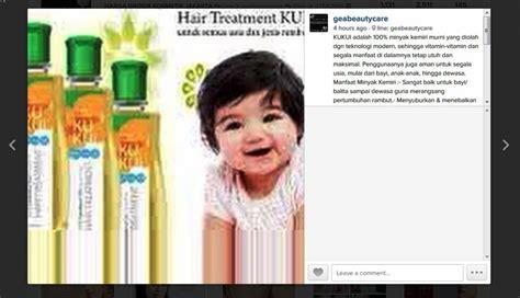 Minyak Kemiri Fora Aman Untuk Bayi minyak kemiri murni kukui sehat kuat panjang subur rambut