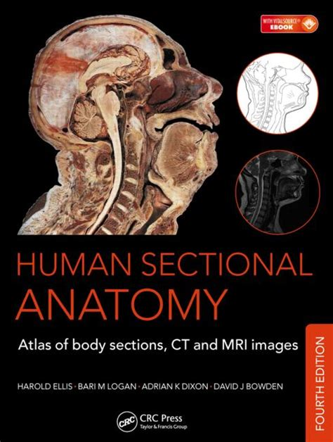Human Sectional Anatomy Atlas Of Sections Ct And