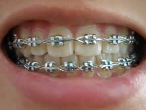 braces color the gallery for gt braces colors combinations