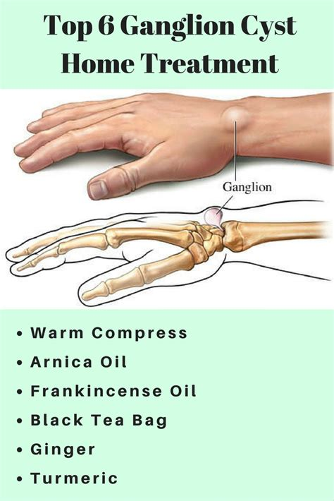 ganglion cyst home treatment health plan