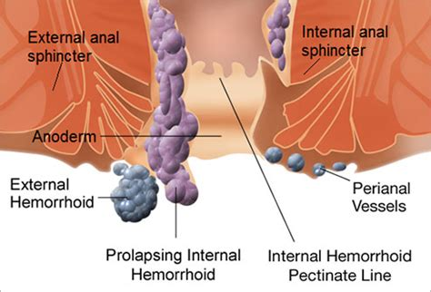 slideshow: what are hemorrhoids?