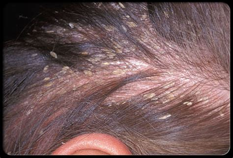 thin hair scalp hurting tip of the day how to reduce hair dandruff