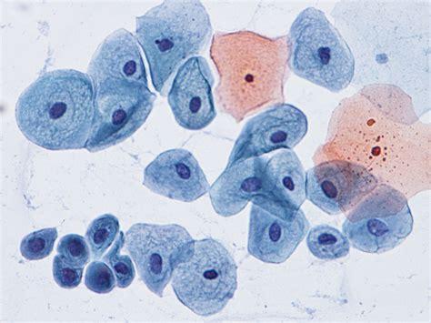 pap test metaplasia pap smear cytology site