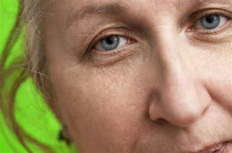 Reasons For Eye Circles And Puffiness by What Causes Eye Bags Puffiness And Circles