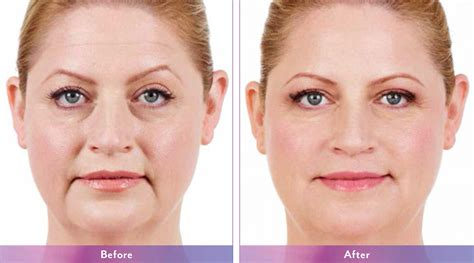 juvederm face wrinkles and folds casper wy central