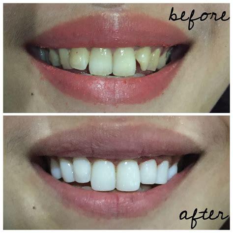 Gigi Sehat Dan Cantik inilah 3 pantangan setelah memasang veneer gigi asek