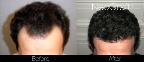 hair restoration hair transplant neograft orlando neograft hair transplant new scar less neograft hair