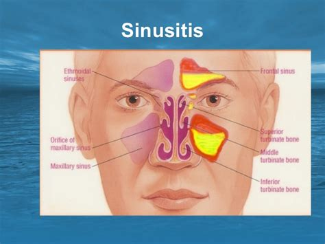 Asal Sinus diseases of the paranasal sinuses