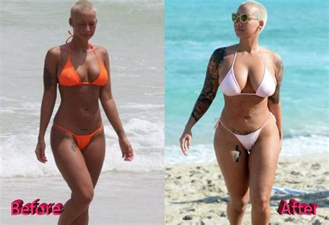 Breast Lift Before And After Photos Plastic Surgery   amber rose plastic surgery before and after