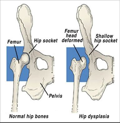 hip dysplasia dogs hip dysplasia great dane rescue of southeast save a dane gdrst