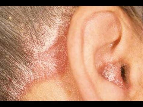 infeccion cuero cabelludo fungal scalp infection tinea capitis