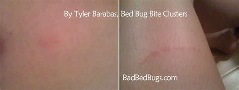bedbugs bites discussion pg