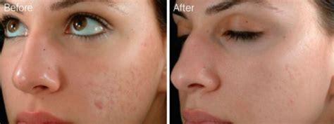 micro needling 101 an intro to the science benefits