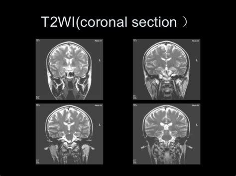 Copy Mri The Central Nervous System central sulcus ct related keywords central sulcus ct keywords keywordsking