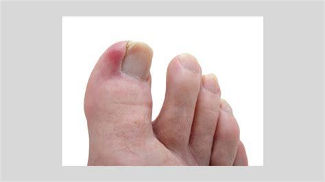 nail bed pain ingrown toenails causes symptoms and diagnosis