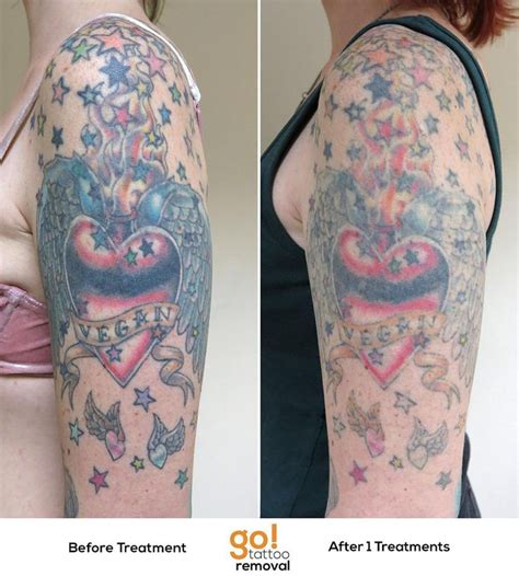 tattoo removal estimate 798 best removal in progress images on