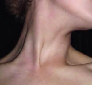 razor bumps on neck