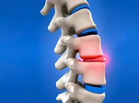 slipped disc surgery cost herniated disc surgery herniated disc india india cost herniated disc