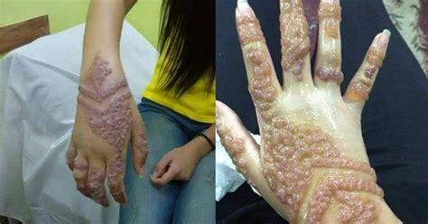 membuat tato di dada wanita tangan wanita ini jadi mengerikan setelah di tato