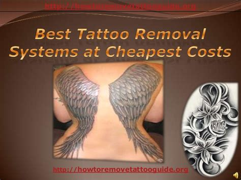 tattoo removal cost killeen tx best tattoo removal systems at cheapest costs