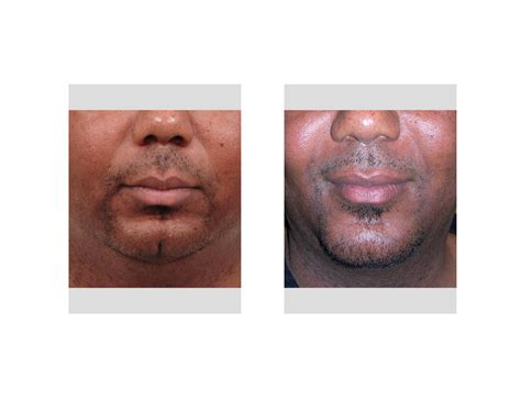 remedy fr cleft chin sliding genioplasty gallery