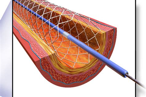 Cardiac Stent Images