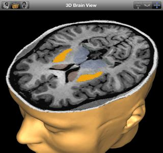mri biomarker for parkinson's disease progression | brain