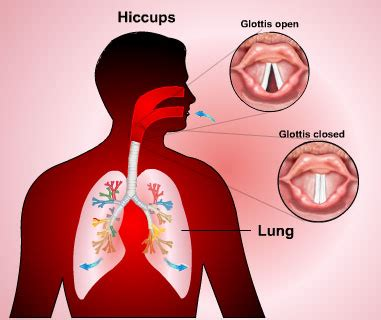 hiccups causes treatment references
