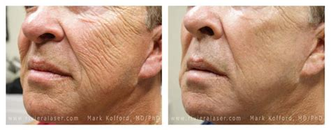 laser wrinkle removal before and after before and after photos