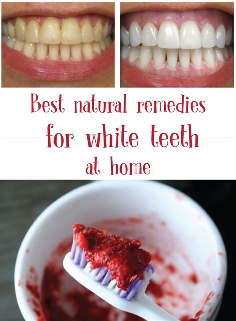 1308 best teeth whitening images on teeth