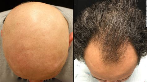 Type 2 Hair Loss by Reverses One Baldness Type Is Pattern Next Cnn