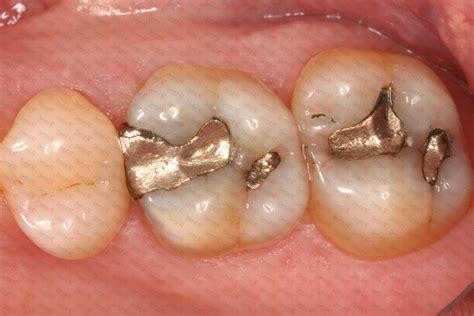 lada al mercurio admix alloy capsulas de amalgama de plata 43 y cobre