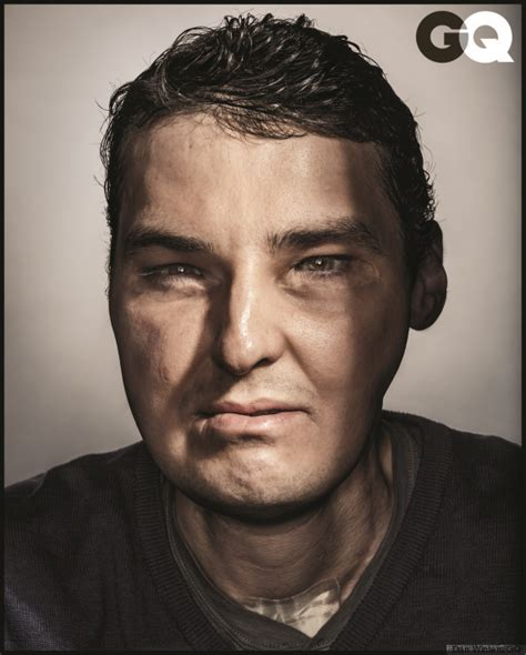 Richard Norris | richard norris face transplant patient appears on the