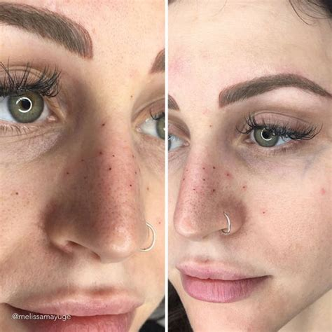 tattoo removal affect freckles some try to remove their natural freckles others tattoo