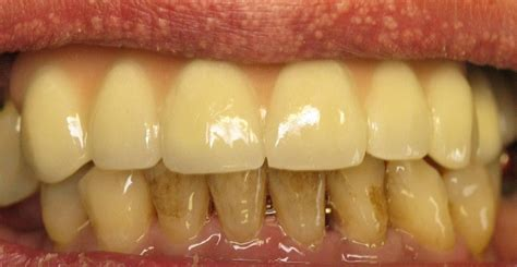 teeth stains  discolorations     fix