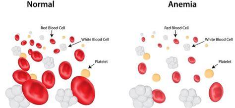 emoglobina bassa alimentazione come combattere l anemia con l alimentazione sana