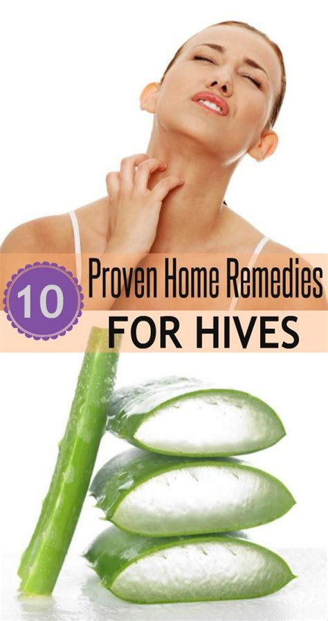 proven home remedies to reduce hives homeremedies to