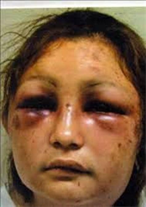 imagenes mujeres golpeadas por hombres 1000 images about mujeres maltratadas on pinterest