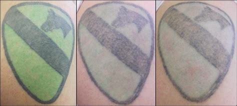 laser tattoo removal black green vanish laser removal and skin aesthetics fort