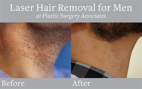 brazilian hair removal for men pictures men s brazilian laser hair removal laser hair removal