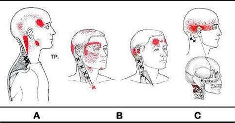 ronzio in testa cause mal di testa da cervicale perch 233 vengono e come bloccarli