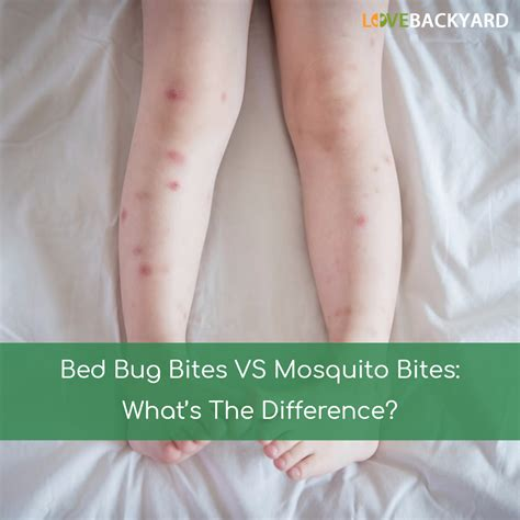 bed bug bites  mosquito bites whats  difference jul