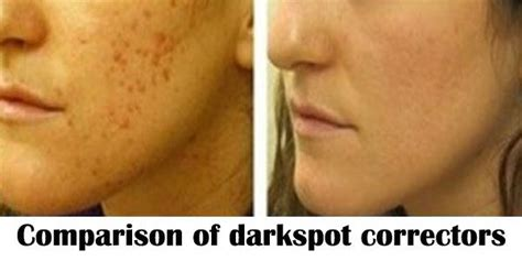 proactiv dark spot corrector before and after the top 10 best blogs on dark spot correctors