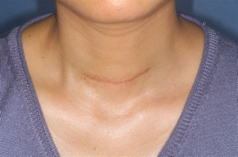 weight management after thyroidectomy thyroidectomy incision in no neck creases yet