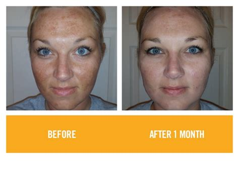 tanning bed before and after rodan fields before and after photos 2015
